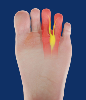 Image result for Morton's neuroma surgery